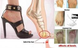 بدترین کفش ها برای پاهای شما