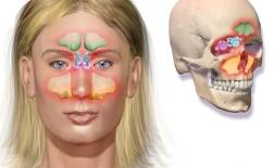 سینوزیت : آشنایی با سینوس، و روشهای پیشگیری و درمان سینوزیت