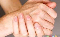 4 روش برای از بین بردن لکههای ناشی از افزایش سن