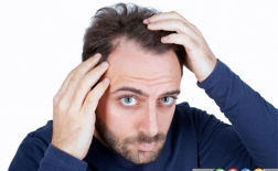 10 شایعه درباره ریزش مو که نباید باور کنید