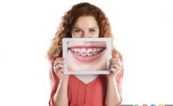 خطرات ارتودنسی دندان ها