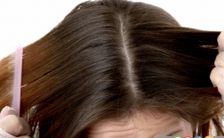 7 روش طبیعی برای مبارزه با شوره سر