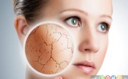 7 نکته برای سلامت پوست در زمستان
