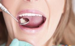 8 چیز که دهانتان درباره ی سلامت شما نشان می دهد