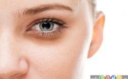 بهترین راهکارها برای رفع سیاهی دور چشم