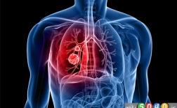 علل مخفی ابتلا به سرطان ریه