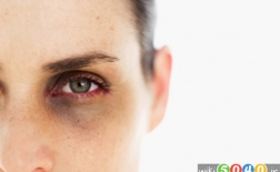 درمان های خانگی برای حلقه های سیاه زیر چشم