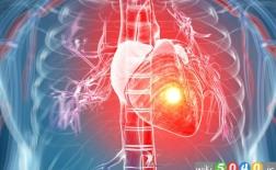 چرا بعضی حملات قلبی خاموش اند؟