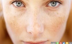 ماسک صورت برای از بین بردن لکه های پوستی
