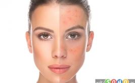 پیشگیری از جوش های پوستی