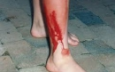 درمان خونریزی زخم ها