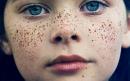 مشکلات پوستی در دختران و نحوه رسیدگی به آنها