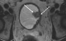 سرطان مثانه: آشنایی کامل با علائم ، روشهای پیشگیری ، و درمان سرطان مثانه