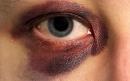 کمکهای اولیه در کبودی چشم