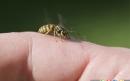 چگونه نیش زنبور را درمان کنیم
