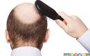 راه های موثر متوقف کردن ریزش مو در مردان