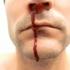 کمک های اولیه برای خونریزی بینی