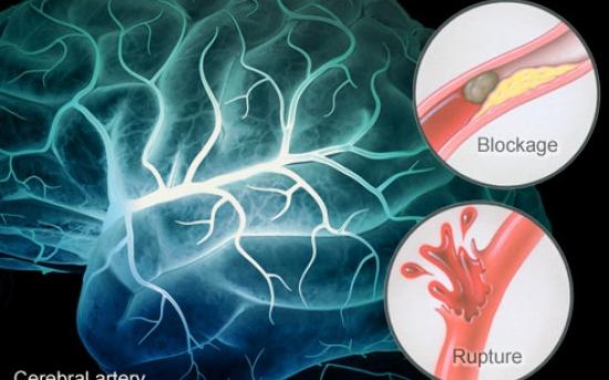 راهنمای تصویری سکته مغزی: پیشگیری، علل و درمان