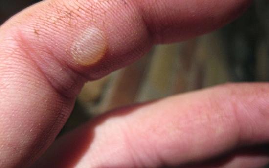 چگونه تاول ها را درمان کنیم؟