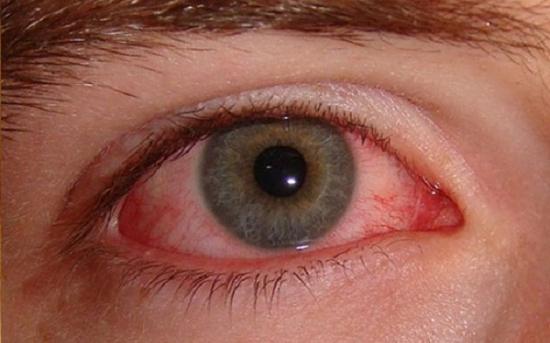 کمک های اولیه برای آسیب های چشمی