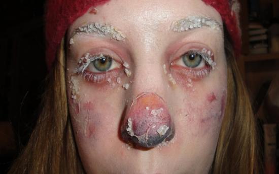 درمان سرمازدگی