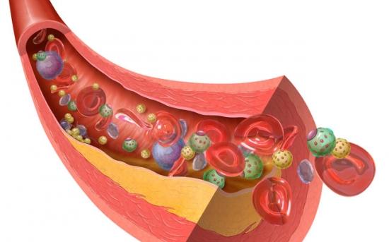 آشنایی با کلسترول، سطح کلسترول و غذاهای مفید و مضر